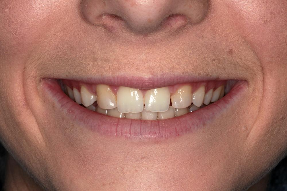 Before porcelain veneers cosmetic dentistry san antonio