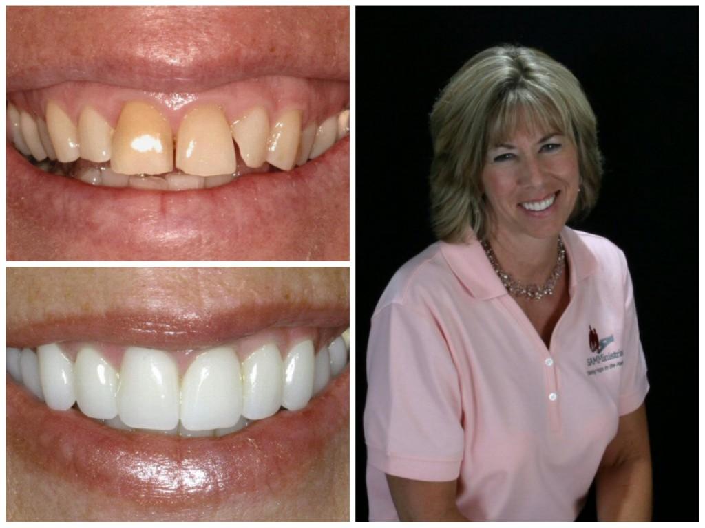 cosmetic dentistry, porcelain veneers, cosmetic dentist