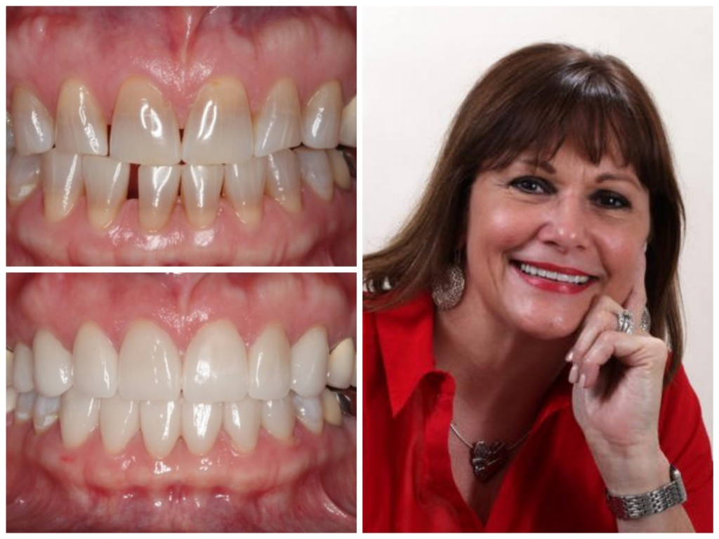 San Antonio Porcelain Veneers | Cosmetic Dentist in San Antonio, Texas