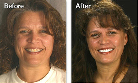 Debra - before and after porcelain veneers