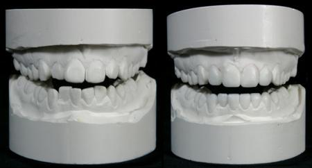 dental model for veneers