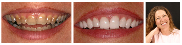Lisa - before and after treatment for tetracycline teeth staining