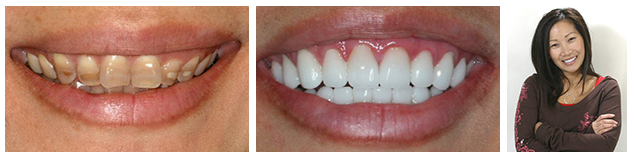 Julie - before and after treatment for tetracycline-stained teeth