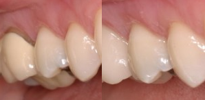 before and after picture of porcelain crown treatment on canine tooth