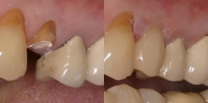 before and after crown replacement using CEREC