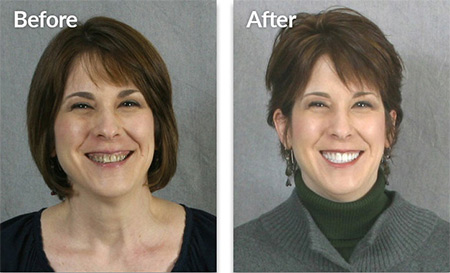 Jana - before and after pictures of dental veneers treatment