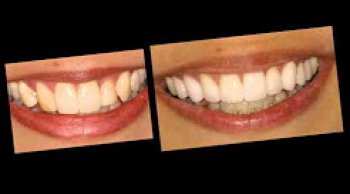 Crooked Teeth Corrections