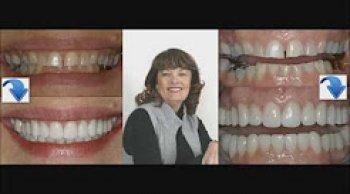 Corrections of Worn Teeth