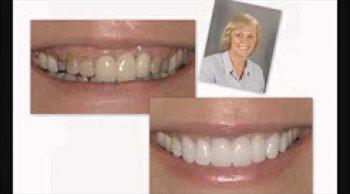 Correcting Previous Dentistry