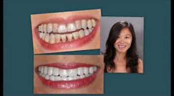 Teeth Discoloration Corrections
