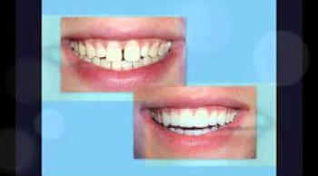 Corrections of Spaces Between Teeth