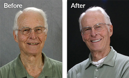 Millis - before and after porcelain veneers