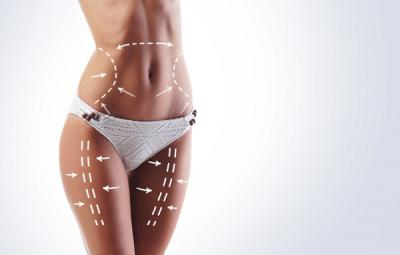 Target areas for liposuction
