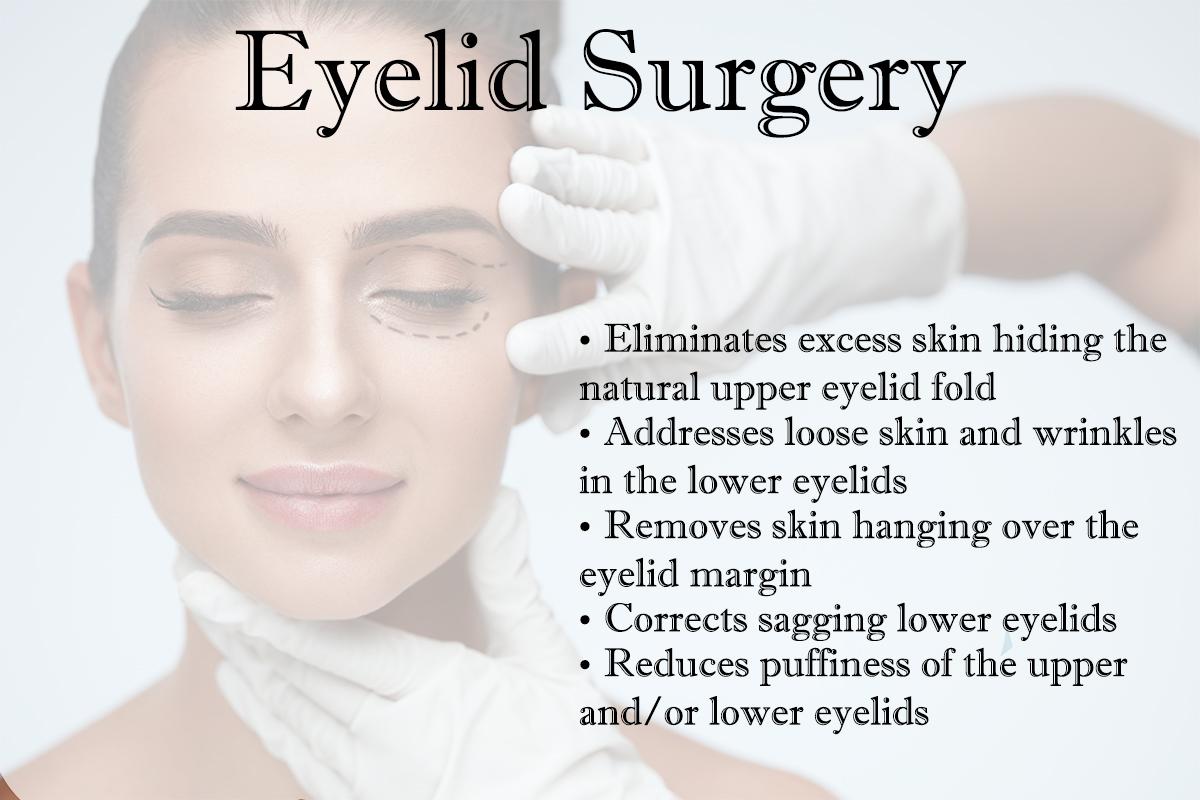 Image of Kansas City woman explaining eyelid surgery