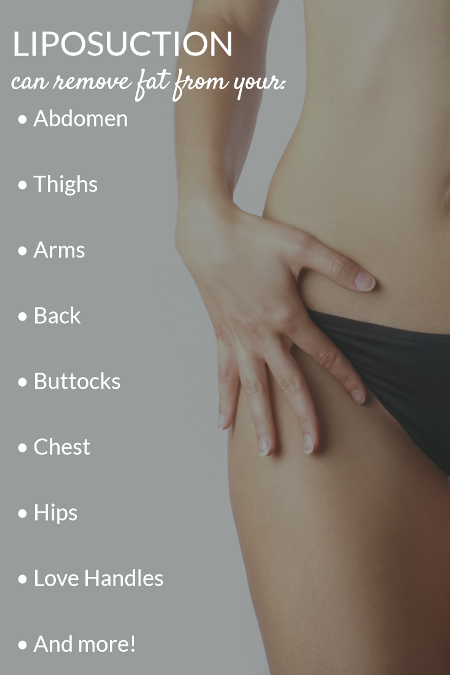 graphic showing the areas where liposuction can remove fat