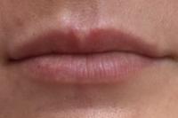Before Lip Tattoo