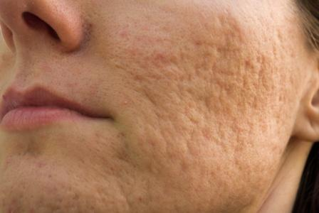 woman with acne scars on her cheek