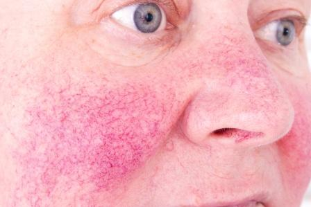 woman with severe rosacea on her cheeks and nose