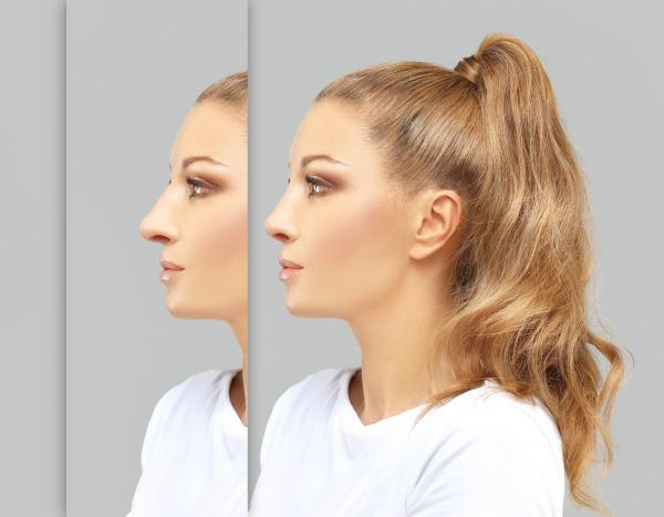 Nose Job Results | Before and After