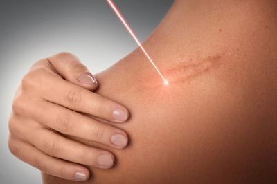 Laser Scar Revision Treatment