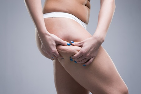 woman pinching fat on her outer thigh