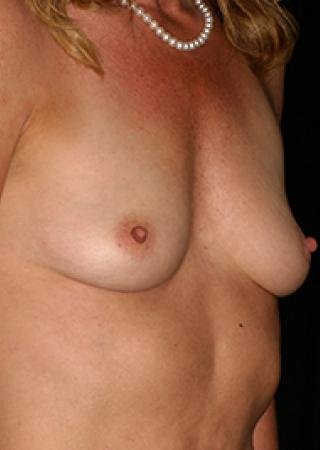 Flat Chested Patient Before Breast Enhancement