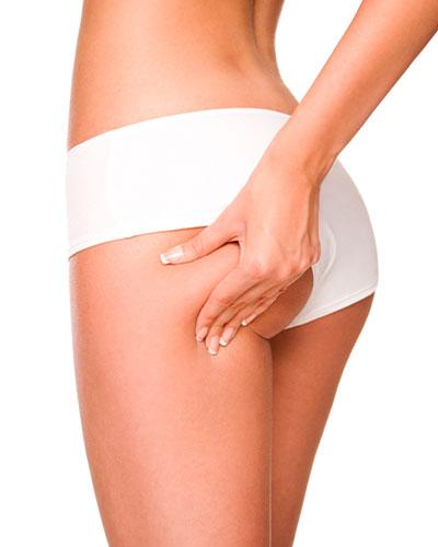 woman in underwear pinching her buttock