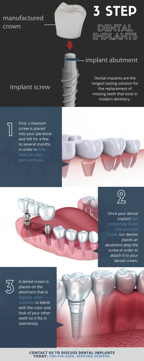 Infographic: 3-Step Process of Dental Implants | Aurora, CO implant dentists