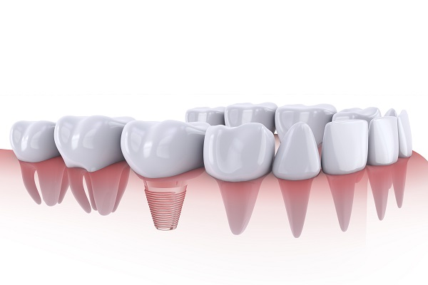 Dental implant illustration by Denver dentists