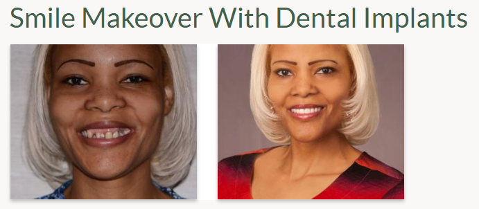 Before-and-after picture of our Aurora CO dental implant patient