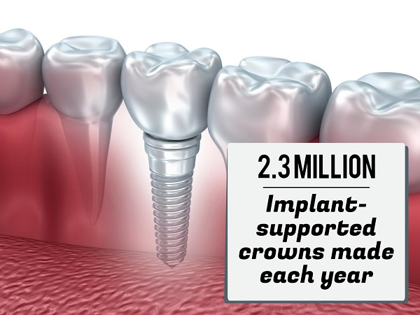 Implant dentistry statistics Colorado and the USA