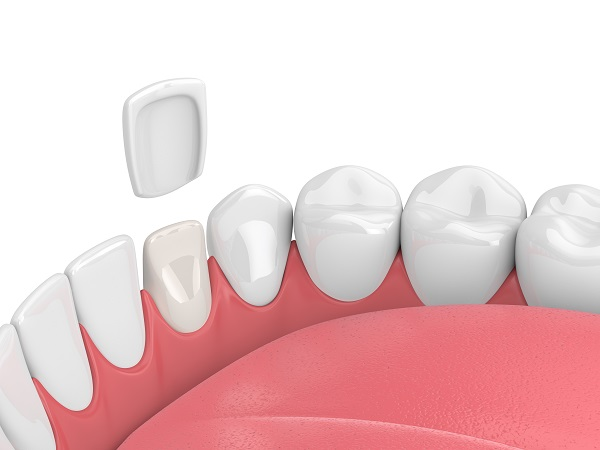 Illustration of a porcelain veneer being placed on the front tooth