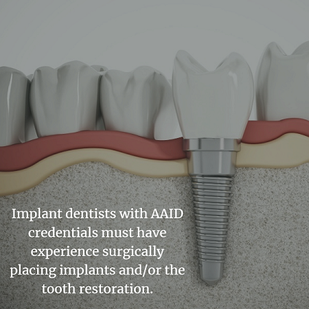 Dental implants in the jaw in Aurora CO