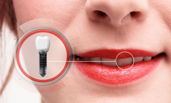 Close-up of a dental implant replacing a woman's front tooth