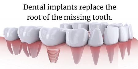 Denver dental implants mini graphic