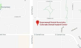 Dental Implants - Colorado Dental Implant Center - Denver, CO