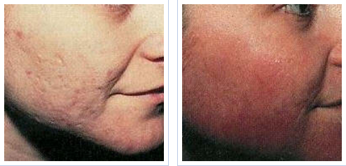 Fractional laser treatment for acne scarring - before and after