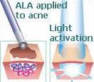 ALA acne treatment diagram