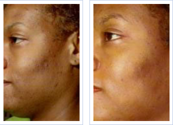 before and after 4 NeoStrata chemical peel sessions