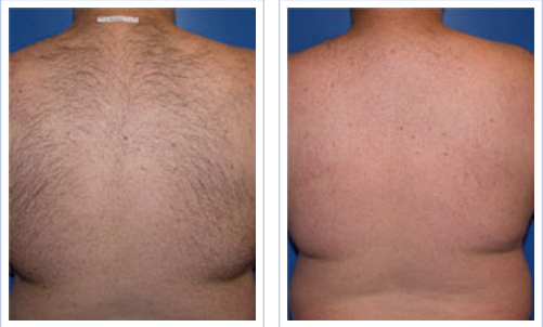before and after upper back hair removal with laser light