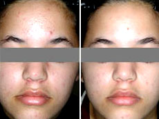 Blu-U acne treatment - before and after