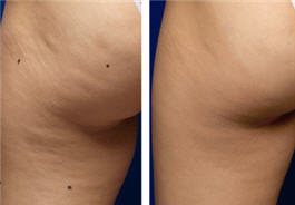 Thermage cellulite treatment for the thigh and buttock - before and after