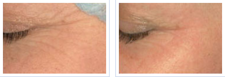 Fractional skin resurfacing for crow's feet - before and after