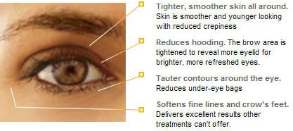 diagram for Thermage treatment of the eyes