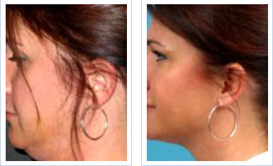 facial mesotherapy - before and after