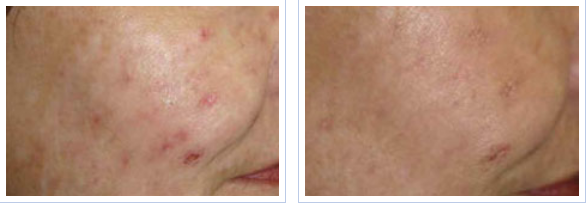 fractional laser treatment for acne scarring - before and after 2 sessions
