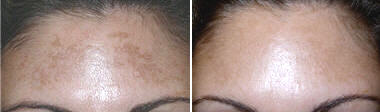 Fractional resurfacing of the forehead and brow - before and after