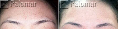 Intense pulsed light treatment of the brow - before and after