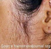 excess hair along the ear
