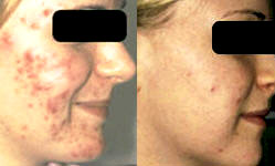 before and after acne treatment with Palomar LuxV